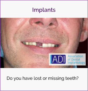 Dental Implants | Stuart Steven Edinburgh