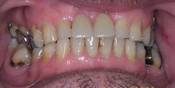 After denture treatment - Edinburgh Dentist