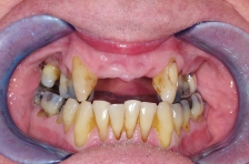 Before Dental Implant Surgery
